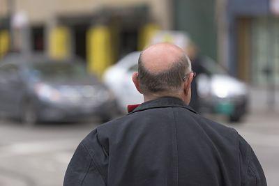 celulas madre alopecia